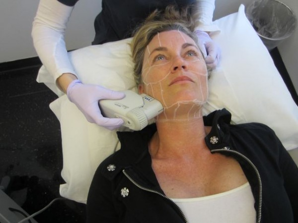 My Face/Neck Lift Without a Knife: Ultherapy Part 1