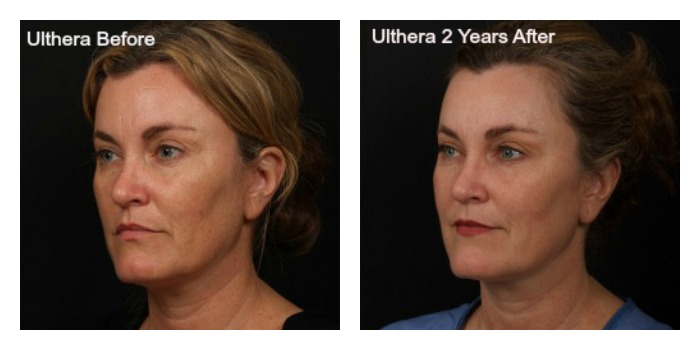 My Ultherapy Before and After Photos aka Ultherapy: Part 3 | Shannon