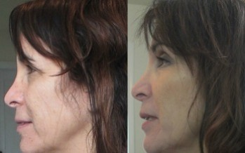 She Looked 10 Years Younger: Perfect Derma Chemical Peel